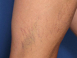 spider-veins-example