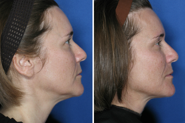 Ultherapy Face And Upper Neck Case 3 New You