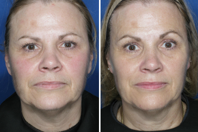 Ultherapy Face And Upper Neck Case 5 New You