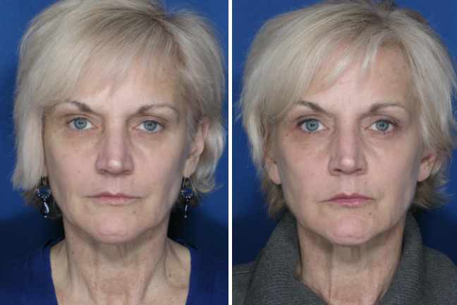 Ultherapy Face And Upper Neck Case 2 New You